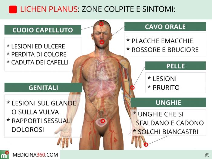 Lichen scleroatrofico glande