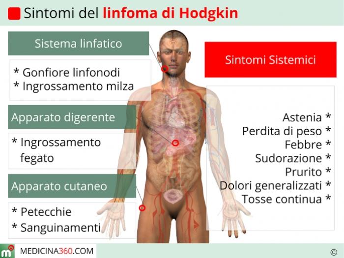 Sintomi del linfoma di Hodgkin