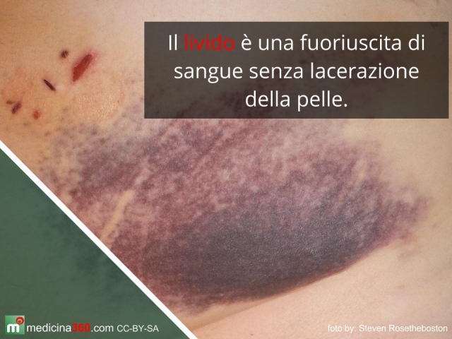 Se è thrombophlebitis possibile