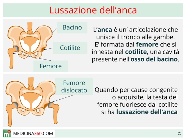 Lussazione anca