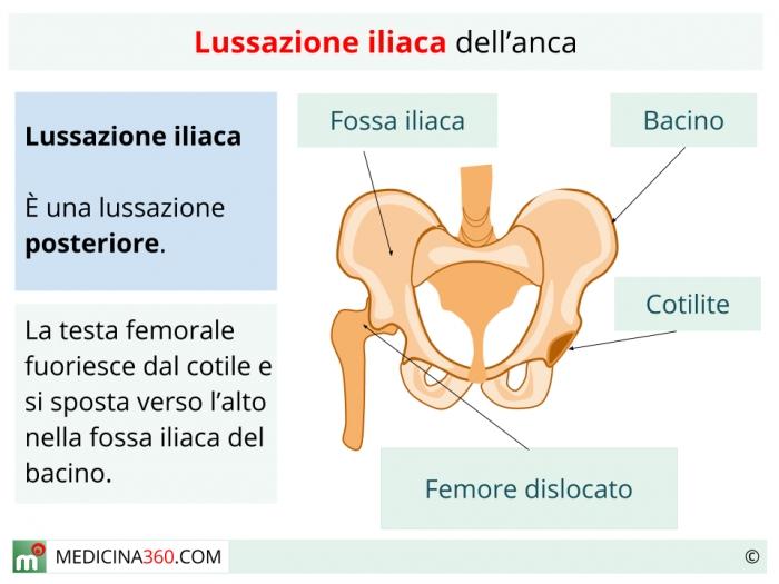 Lussazione iliaca del'anca