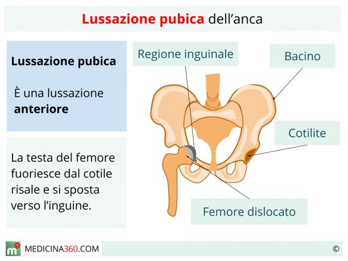 Lussazione pubica dell'anca