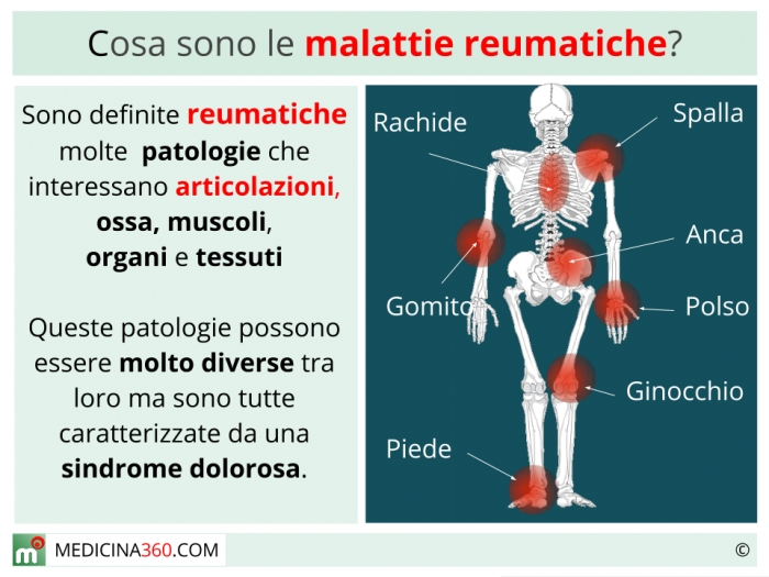 Malattia renale cronica (MRC)