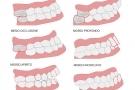 Malocclusione dentale o mandibolare: rimedi, conseguenze e postura