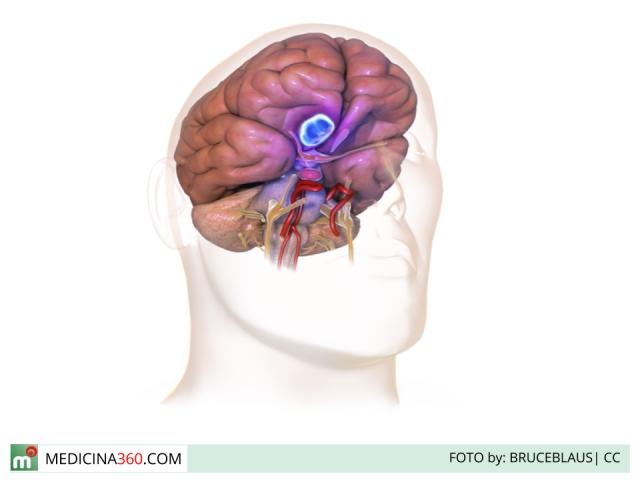 Meningioma: tipi, sintomi, cause e cure per il tumore delle meningi