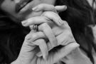 Micosi delle unghie di mani e piedi: cause, cure e rischi dell'onicomicosi