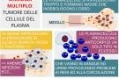 Mieloma multiplo: sopravvivenza, sintomi, diagnosi e terapia