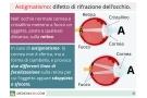 Astigmatismo: sintomi, correzione, test e tipi (miopico, ipermetropico, misto ecc.)
