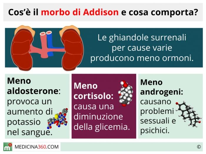 corticosteroidi improvvisi di perdita di peso