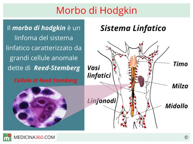 Morbo di Hodgkin: sintomi, cause della sindrome e sopravvivenza