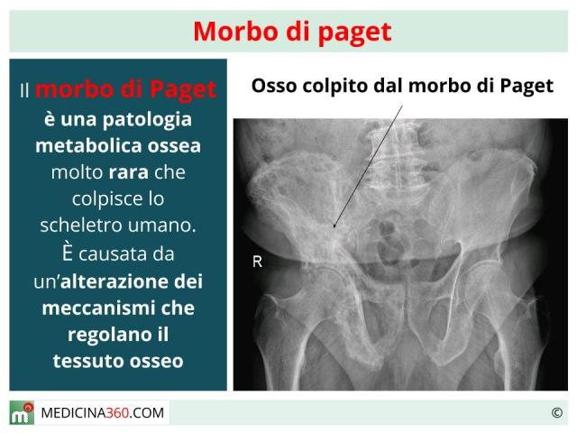 Morbo di Paget: sintomi, diagnosi e terapia per la sindrome
