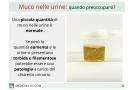 Muco nelle urine: cause, diagnosi e cura