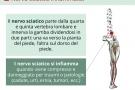 Nervo sciatico infiammato