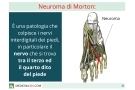 Neuroma di Morton: sintomi, diagnosi, cause, terapia e rimedi