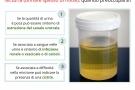 Nicturia, urinare spesso di notte: cause e rimedi
