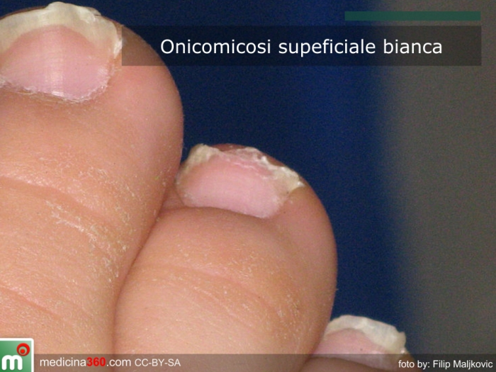 Immagine di onicomicosi superficiale bianca