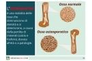 Osteoporosi: sintomi, cause cura e prevenzione