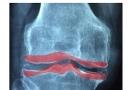 Osteosclerosi: cos'è? Sintomi, tipi, cause e cura