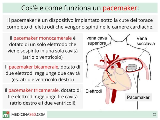 Pacemaker cardiaco: intervento di impianto, rischi e tipi (monocamerale, bicamerale, tricamerale)