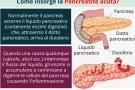Pancreatite acuta: cause, sintomi, diagnosi, cura ed alimentazione