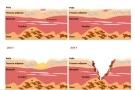 Piaghe da decubito: stadi e cura delle lesioni