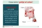 Polipi al colon: benigni o maligni, sintomi, cause ed intervento
