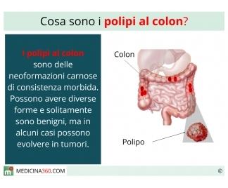 Polipi al colon