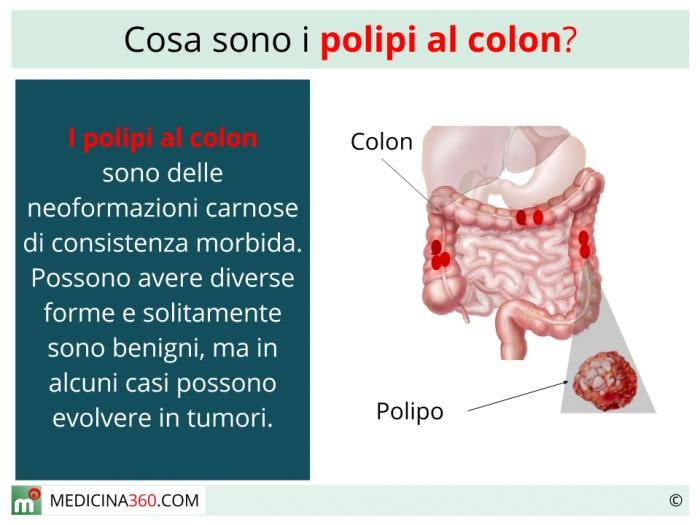 Dieta dopo polipectomia al colon