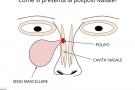 Poliposi nasale: sintomi, cause, cure ed intervento per i polipi al naso