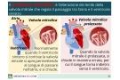 Prolasso mitralico: sintomi, cause, cure e conseguenze della valvola deteriorata