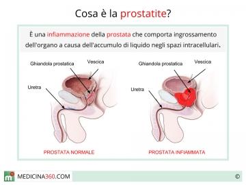 cosa causa tumore alla prostata