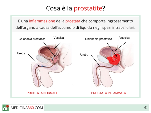 prostata infiammata cause