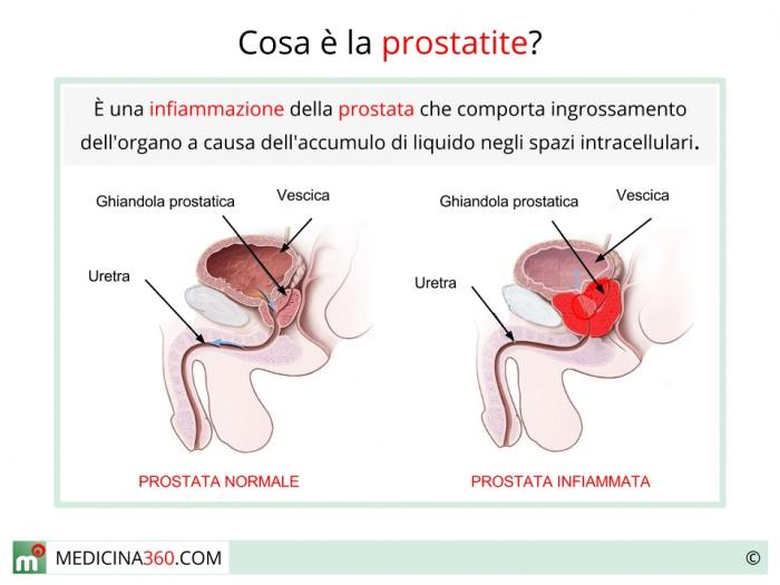 la prostatite può causare dolore muscolare