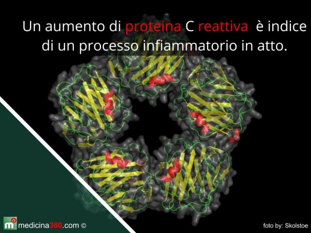 Proteina C reattiva alta