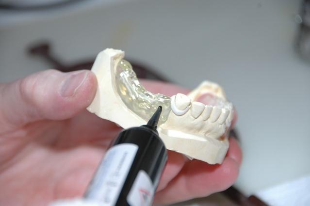 Protesi dentarie: cosa sono? Tipi, prezzi, benefici ed effetti collaterali