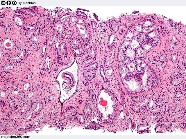antigene prostatico specifico alto