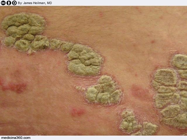 Eczema su un fondo al bambino di una fotografia con spiegazioni