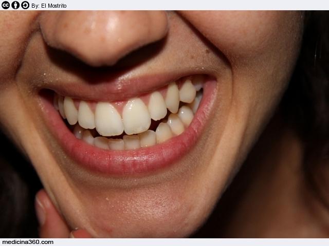 l'ultimo nuovo elenco come trovare Pulizia dei denti