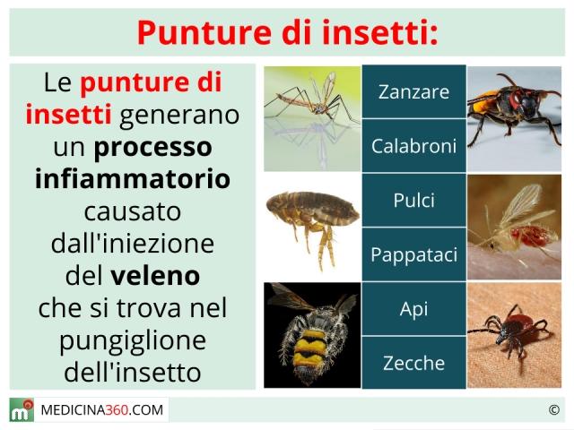 Punture di pulci nell uomo top ci sono le pulci ma non riesci a trovare i segni della loro - Punture di insetti nel letto ...