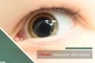 Pupille dilatate, le cause della midriasi pupillare fissa o reagente