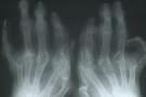 reumatismi sintomi
