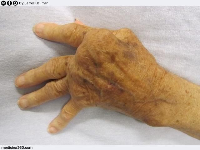 Reumatismi: sintomi, cause diagnosi, cura e rimedi naturali