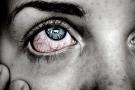 Rottura capillare dell'occhio: cause, sintomi e cure