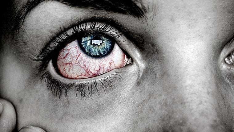 rimedi naturali per un occhio nero
