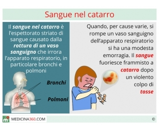 Sangue nel catarro