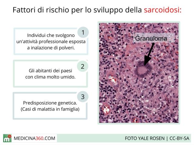 Sarcoidosi: sintomi, cause, diagnosi, terapia e zone colpite (polmonare, cutanea, ossea, cardiaca)