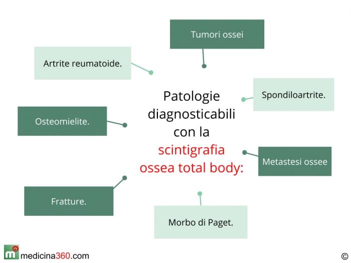 Patologie riscontrabili con la scintigrafia ossea total body