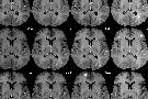 Sclerosi multipla: sintomi, cure, cause e diagnosi della sclerosi a placche