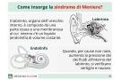 Sindrome di Meniere: sintomi, diagnosi e cura del morbo