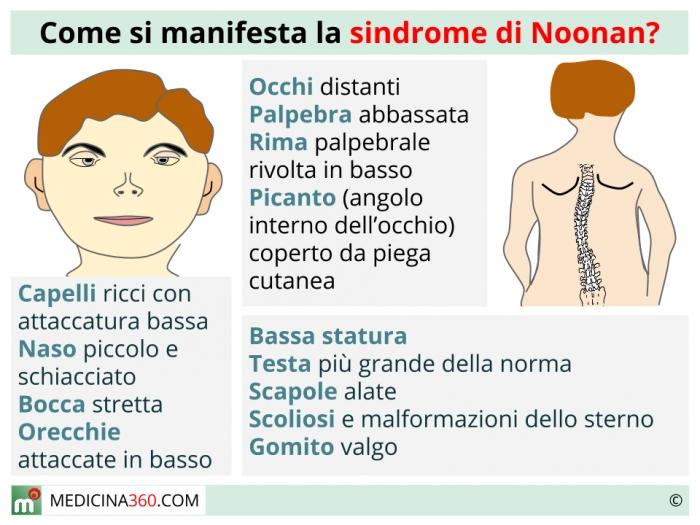 Sindrome Di Noonan Sintomi E Terapia Della Malattia Genetica